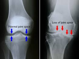 OA knees xray