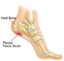 f523cb4673 Plantar Fasciitis or Heel Pain? Causes and Treatment explained.